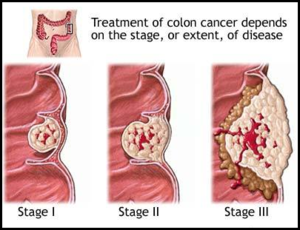 File 300px Colon Cancer Png Dolcerawiki