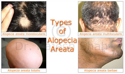 File:Types of alopecia areate.jpeg